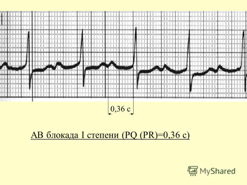 АВ блокада I степени (PQ (PR)=0,36 с) 0,36 с