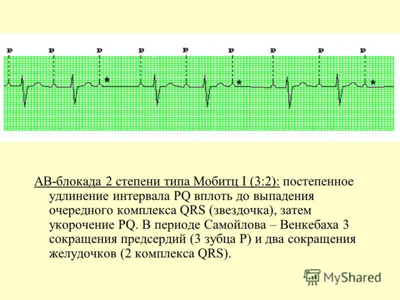 АВ-блокада 2 степени типа Мобитц I (3:2): постепенное удлинение интервала PQ вплоть до выпадения очередного комплекса QRS (звездочка), затем укорочение PQ. В периоде Самойлова – Венкебаха 3 сокращения предсердий (3 зубца Р) и два сокращения желудочко