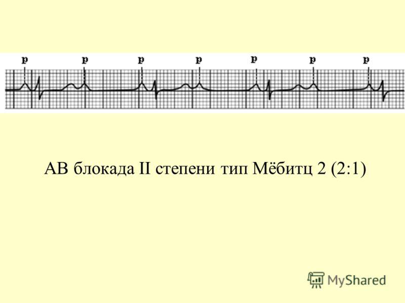 АВ блокада II степени тип Мёбитц 2 (2:1)