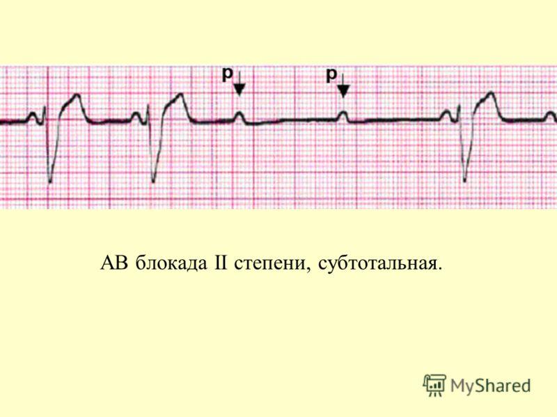 АВ блокада II степени, субтотальная.: www.myshared.ru/slide/270008