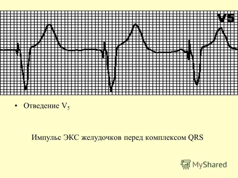 Отведение V 5 Импульс ЭКС желудочков перед комплексом QRS