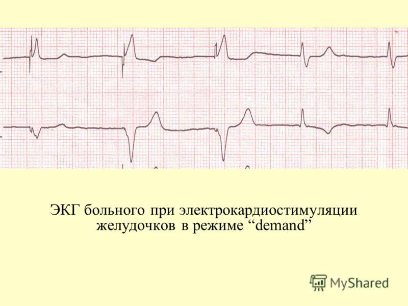 ЭКГ больного при электрокардиостимуляции желудочков в режиме demand