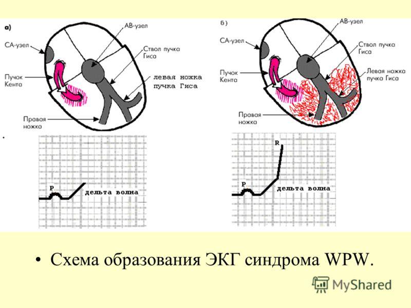Схема образования ЭКГ синдрома WPW.