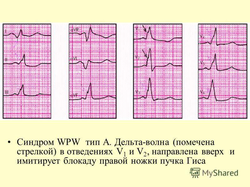 Синдром WPW тип А. Дельта-волна (помечена стрелкой) в отведениях V 1 и V 2, направлена вверх и имитирует блокаду правой ножки пучка Гиса