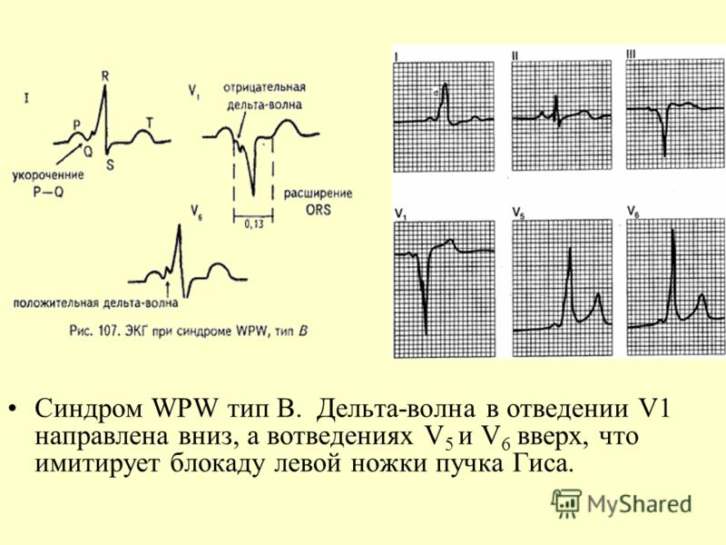 sindrom-postoyannogo-vozbuzhdeniya