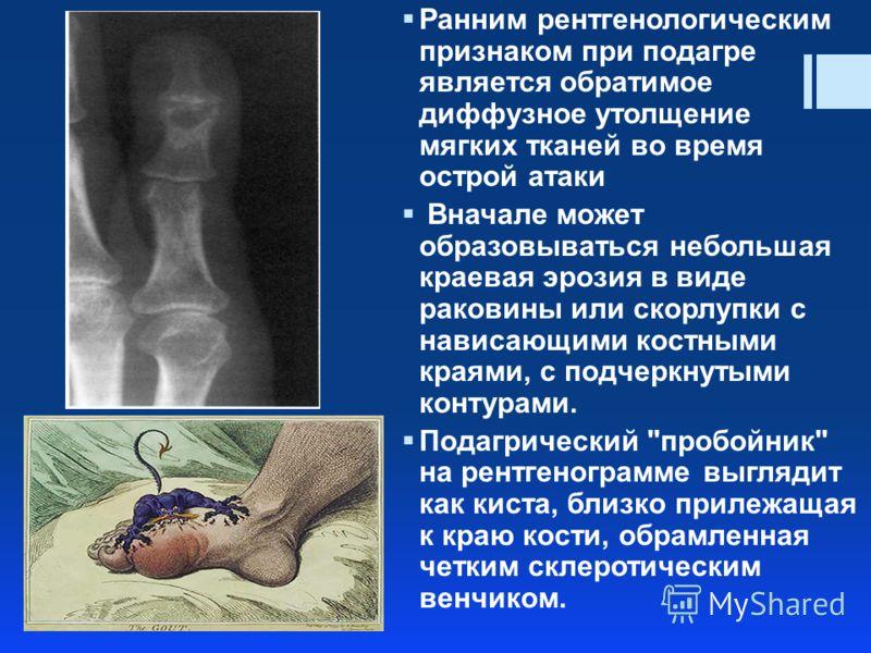 Ранним рентгенологическим признаком при подагре является обратимое диффузное утолщение мягких тканей во время острой атаки Вначале может образовываться небольшая краевая эрозия в виде раковины или скорлупки с нависающими костными краями, с подчеркнут