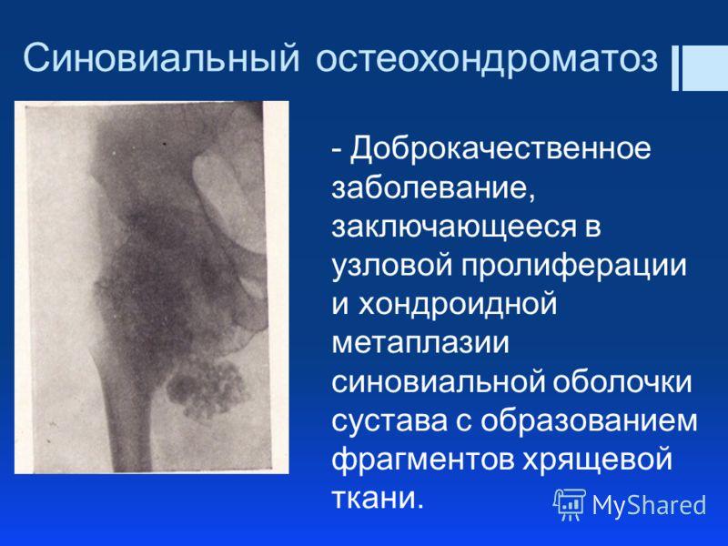 Синовиальный остеохондроматоз - Доброкачественное заболевание, заключающееся в узловой пролиферации и хондроидной метаплазии синовиальной оболочки сустава с образованием фрагментов хрящевой ткани.