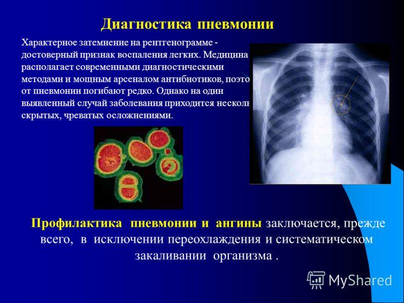 Характерное затемнение на рентгенограмме - достоверный признак воспаления легких. Медицина располагает современными диагностическими методами и мощным арсеналом антибиотиков, поэтому от пневмонии погибают редко. Однако на один выявленный случай забол