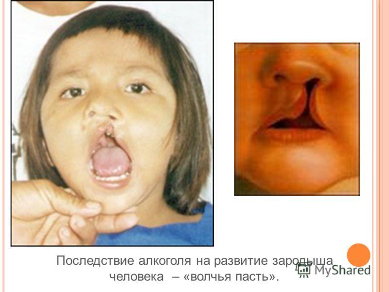 Последствие алкоголя на развитие зародыша человека – «волчья пасть».
