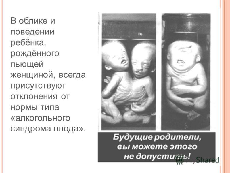 В облике и поведении ребёнка, рождённого пьющей женщиной, всегда присутствуют отклонения от нормы типа «алкогольного синдрома плода».