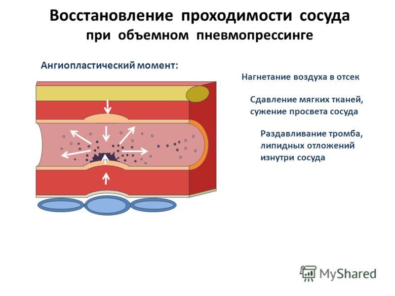 Восстановление проходимости сосуда при объемном пневмопрессинге Ангиопластический момент: Нагнетание воздуха в отсек Сдавление мягких тканей, сужение просвета сосуда Раздавливание тромба, липидных отложений изнутри сосуда