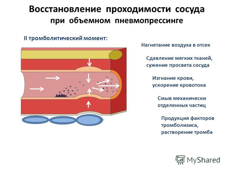 Восстановление проходимости сосуда при объемном пневмопрессинге II тромболитический момент: Нагнетание воздуха в отсек Сдавление мягких тканей, сужение просвета сосуда Изгнание крови, ускорение кровотока Смыв механически отделенных частиц Продукция ф