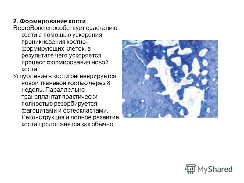 2. Формирование кости ReproBone способствует срастанию кости с помощью ускорения проникновения костно- формирующих клеток, в результате чего ускоряется процесс формирования новой кости. Углубление в кости регенерируется новой тканевой костью через 8