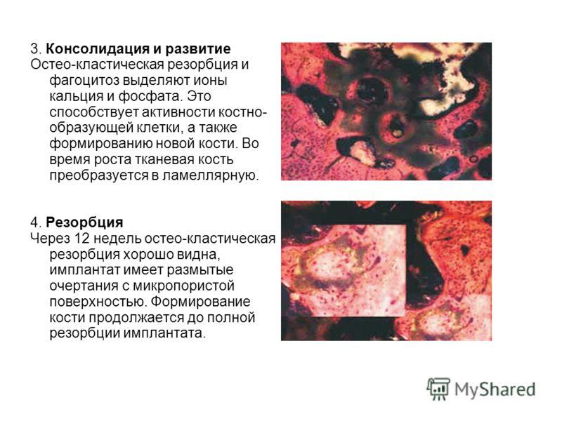3. Консолидация и развитие Остео-кластическая резорбция и фагоцитоз выделяют ионы кальция и фосфата. Это способствует активности костно- образующей клетки, а также формированию новой кости. Во время роста тканевая кость преобразуется в ламеллярную. 4
