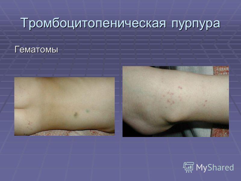 Тромбоцитопеническая пурпура Гематомы
