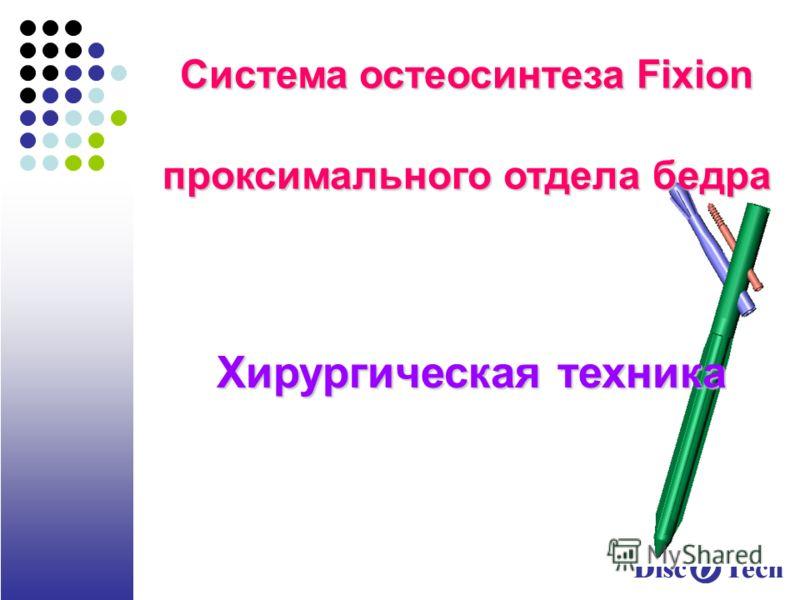 Система остеосинтеза Fixion проксимального отдела бедра Хирургическая техника