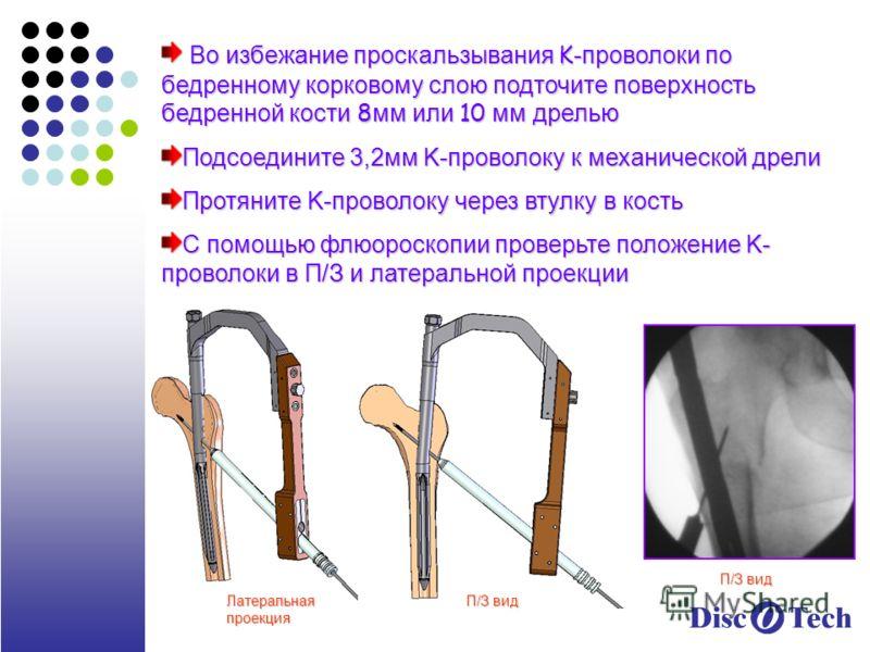 Во избежание проскальзывания K -проволоки по бедренному корковому слою подточите поверхность бедренной кости 8 мм или 10 мм дрелью Во избежание проскальзывания K -проволоки по бедренному корковому слою подточите поверхность бедренной кости 8 мм или 1