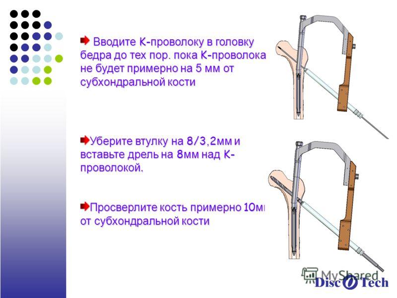 Вводите K- проволоку в головку бедра до тех пор. пока K- проволока не будет примерно на 5 мм от субхондральной кости Вводите K- проволоку в головку бедра до тех пор. пока K- проволока не будет примерно на 5 мм от субхондральной кости Уберите втулку н