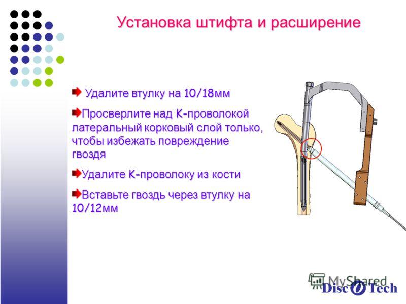 Установка штифта и расширение Удалите втулку на 10/18 мм Удалите втулку на 10/18 мм Просверлите над K- проволокой латеральный корковый слой только, чтобы избежать повреждение гвоздя Удалите K- проволоку из кости Вставьте гвоздь через втулку на 10/12