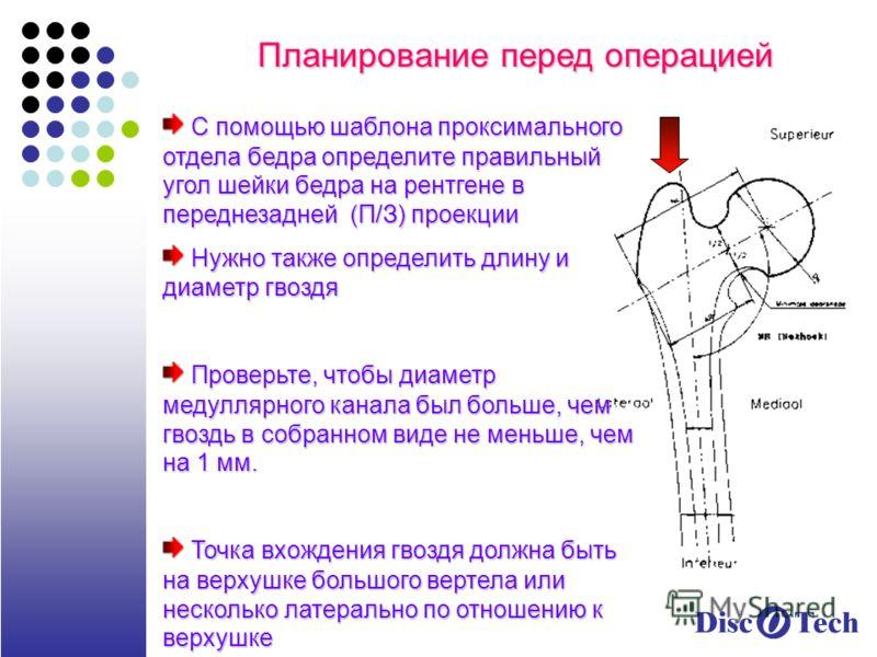 Планирование перед операцией С помощью шаблона проксимального отдела бедра определите правильный угол шейки бедра на рентгене в переднезадней (П/З) проекции С помощью шаблона проксимального отдела бедра определите правильный угол шейки бедра на рентг