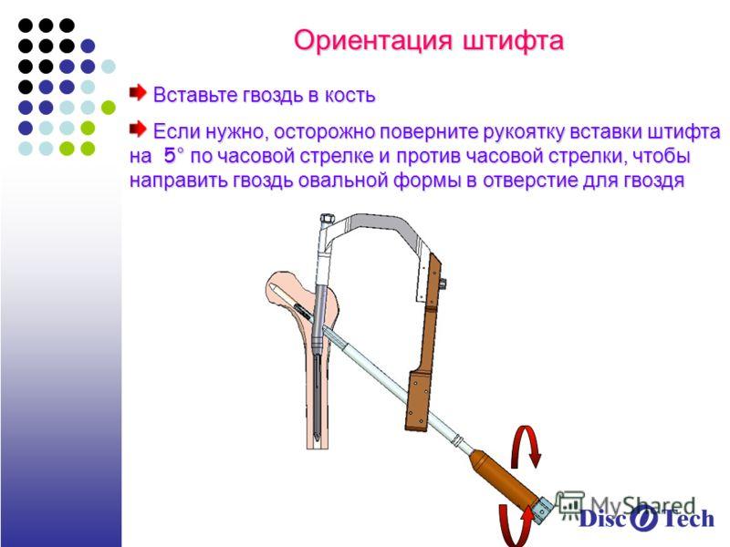 Ориентация штифта Вставьте гвоздь в кость Вставьте гвоздь в кость Если нужно, осторожно поверните рукоятку вставки штифта на 5° по часовой стрелке и против часовой стрелки, чтобы направить гвоздь овальной формы в отверстие для гвоздя Если нужно, осто