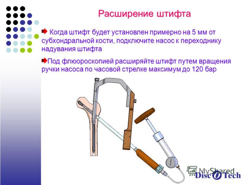 Расширение штифта Когда штифт будет установлен примерно на 5 мм от субхондральной кости, подключите насос к переходнику надувания штифта Когда штифт будет установлен примерно на 5 мм от субхондральной кости, подключите насос к переходнику надувания ш