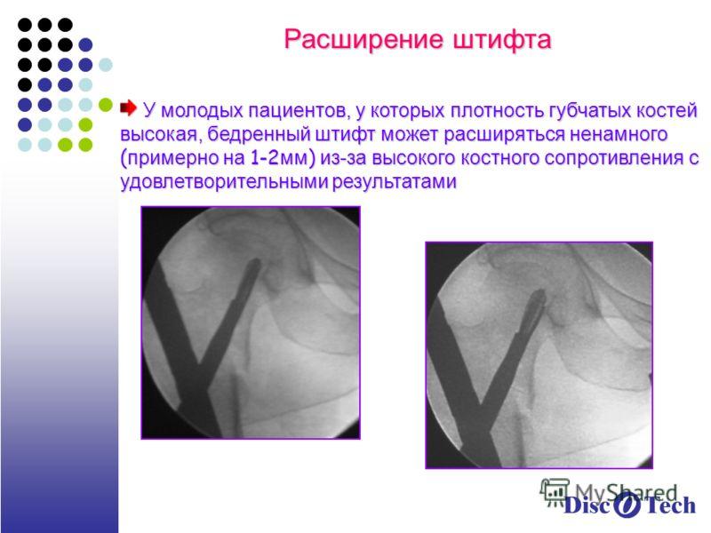 Расширение штифта У молодых пациентов, у которых плотность губчатых костей высокая, бедренный штифт может расширяться ненамного ( примерно на 1-2 мм ) из-за высокого костного сопротивления с удовлетворительными результатами У молодых пациентов, у кот