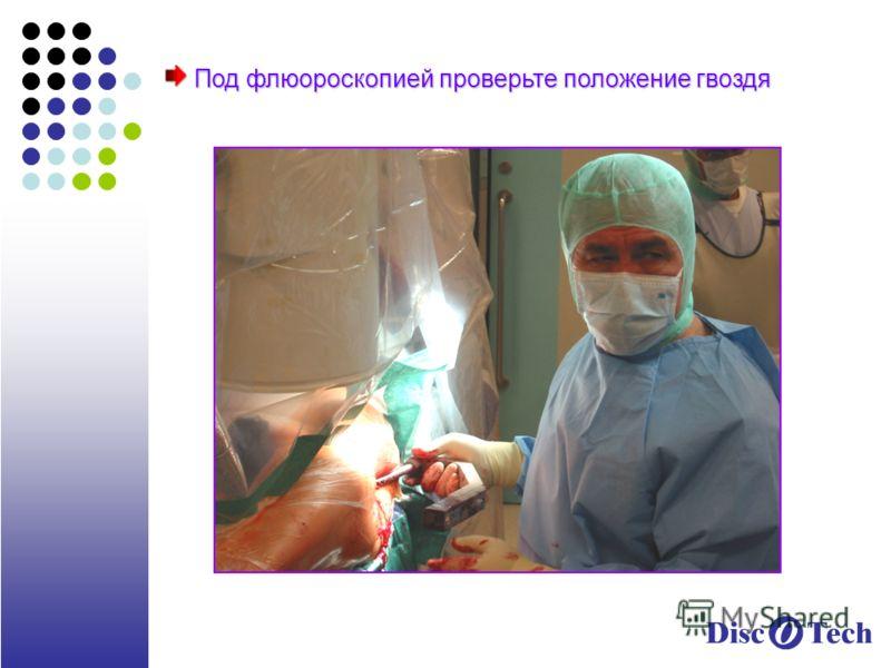 Под флюороскопией проверьте положение гвоздя Под флюороскопией проверьте положение гвоздя