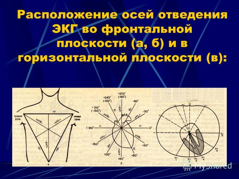 Расположение осей отведения ЭКГ во фронтальной плоскости (а, б) и в горизонтальной плоскости (в):