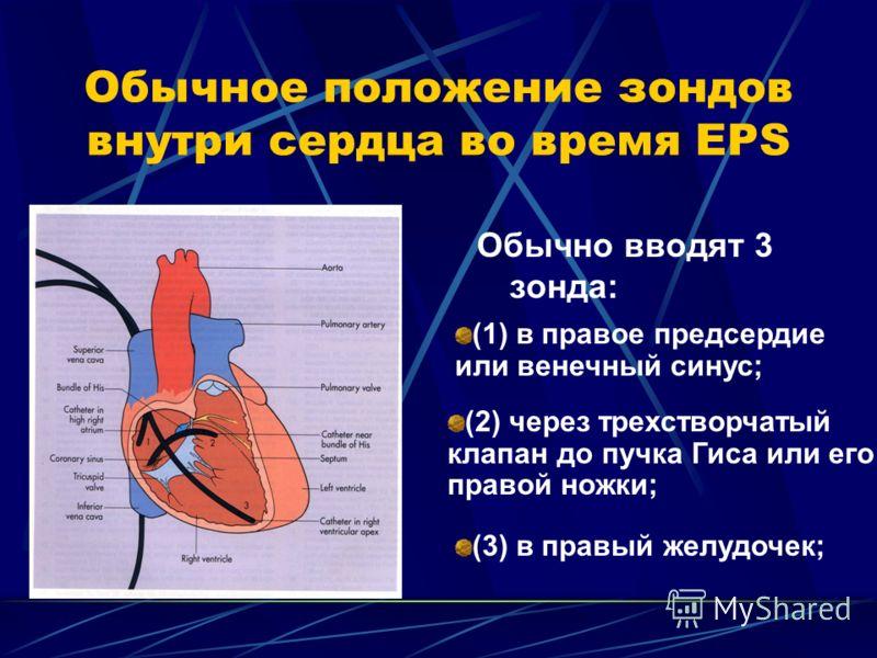 Обычное положение зондов внутри сердца во время EPS Обычно вводят 3 зонда: (1) в правое предсердие или венечный синус; (2) через трехстворчатый клапан до пучка Гиса или его правой ножки; (3) в правый желудочек;