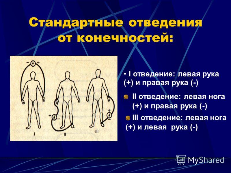Стандартные отведения от конечностей: II отведение: левая нога (+) и правая рука (-) I отведение: левая рука (+) и правая рука (-) III отведение: левая нога (+) и левая рука (-)