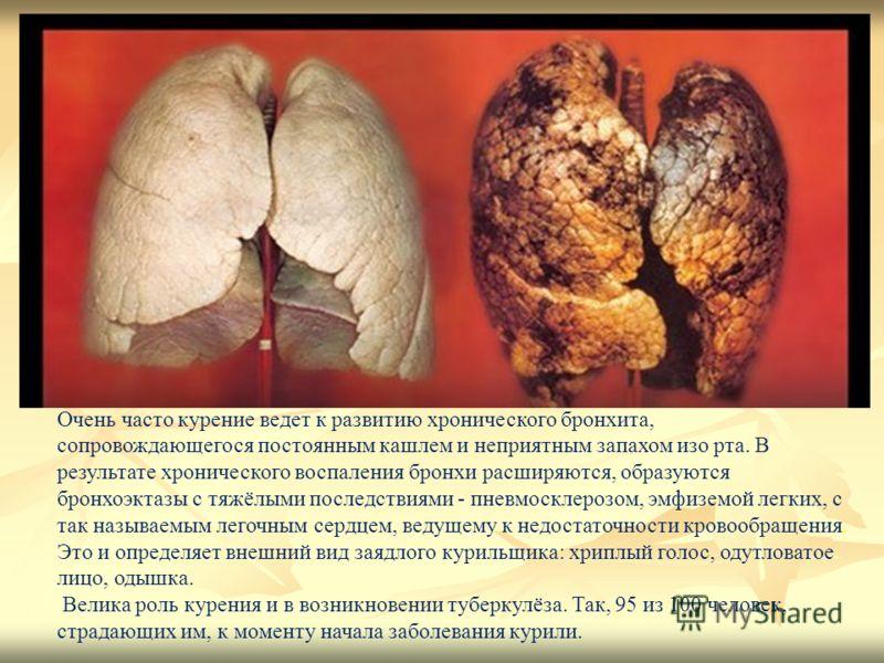Очень часто курение ведет к развитию хронического бронхита, сопровождающегося постоянным кашлем и неприятным запахом изо рта. В результате хронического воспаления бронхи расширяются, образуются бронхоэктазы с тяжёлыми последствиями - пневмосклерозом,