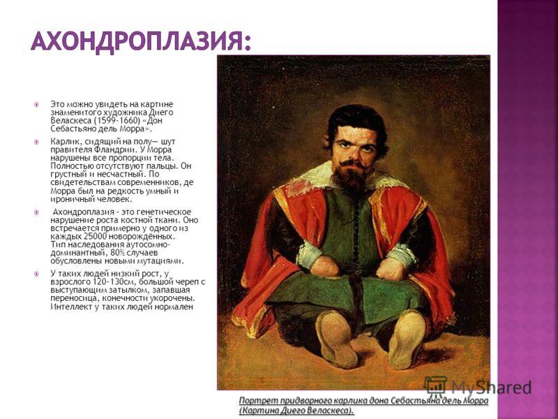 Это можно увидеть на картине знаменитого художника Диего Веласкеса (1599-1660) «Дон Себастьяно дель Морра». Карлик, сидящий на полу шут правителя Фландрии. У Морра нарушены все пропорции тела. Полностью отсутствуют пальцы. Он грустный и несчастный. П
