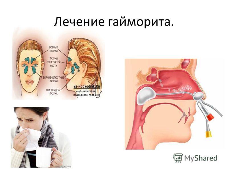 Лечение гайморита.