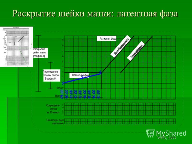 Раскрытие шейки матки: латентная фаза 09:0010:0011:0012:0013:0014:0015:0016:0017:00 X X X WHO, 1994