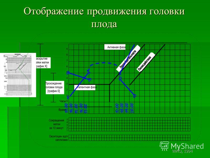 13:0014:00 15:00 16:00 17:00 18:00 19:0020:00 Отображение продвижения головки плода X X O O O X O WHO, 1994