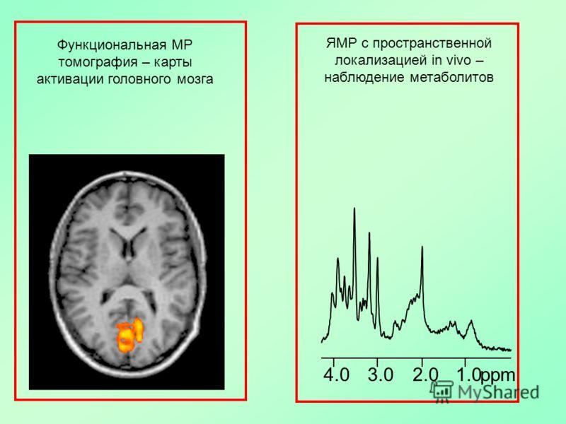Функциональная МР томография – карты активации головного мозга ЯМР с пространственной локализацией in vivo – наблюдение метаболитов 1.0ppm2.03.04.0