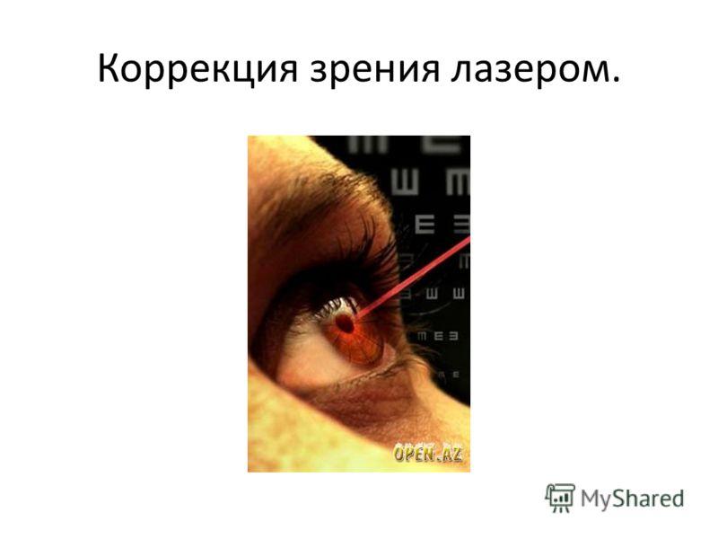 Коррекция зрения лазером.