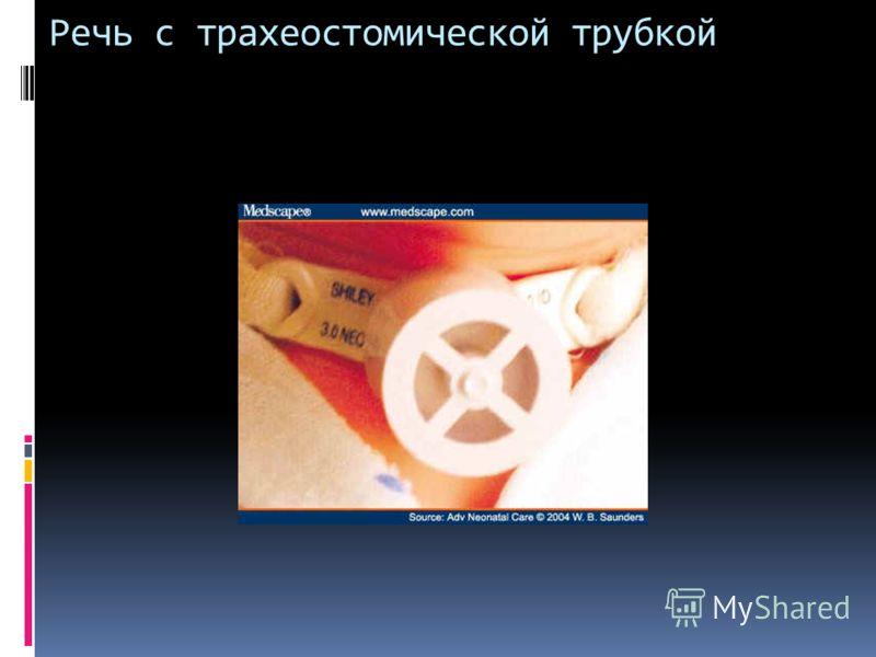 Речь с трахеостомической трубкой