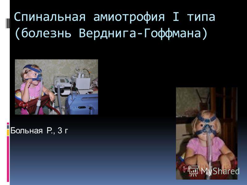 Спинальная амиотрофия I типа (болезнь Верднига-Гоффмана) Больная Р., 3 г
