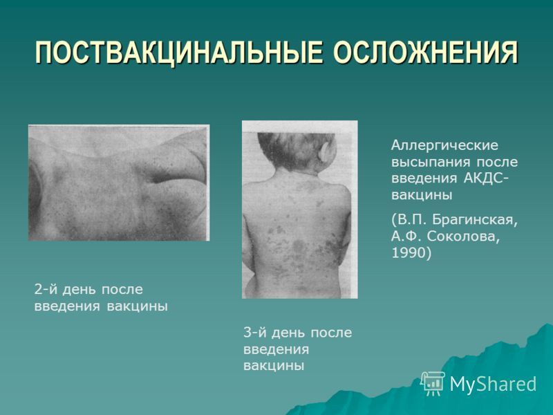 ПОСТВАКЦИНАЛЬНЫЕ ОСЛОЖНЕНИЯ Аллергические высыпания после введения АКДС- вакцины (В.П. Брагинская, А.Ф. Соколова, 1990) 2-й день после введения вакцины 3-й день после введения вакцины