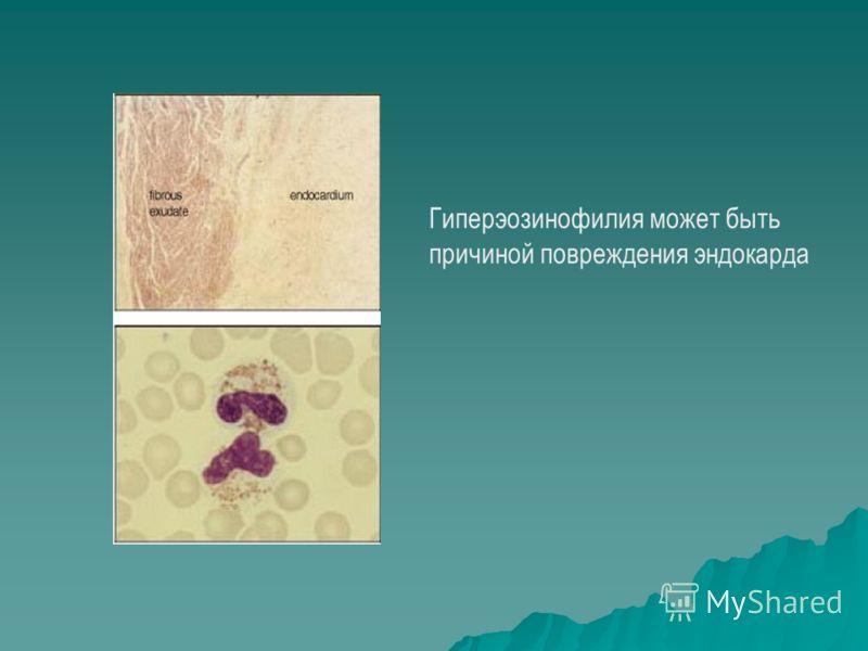 Гиперэозинофилия может быть причиной повреждения эндокарда