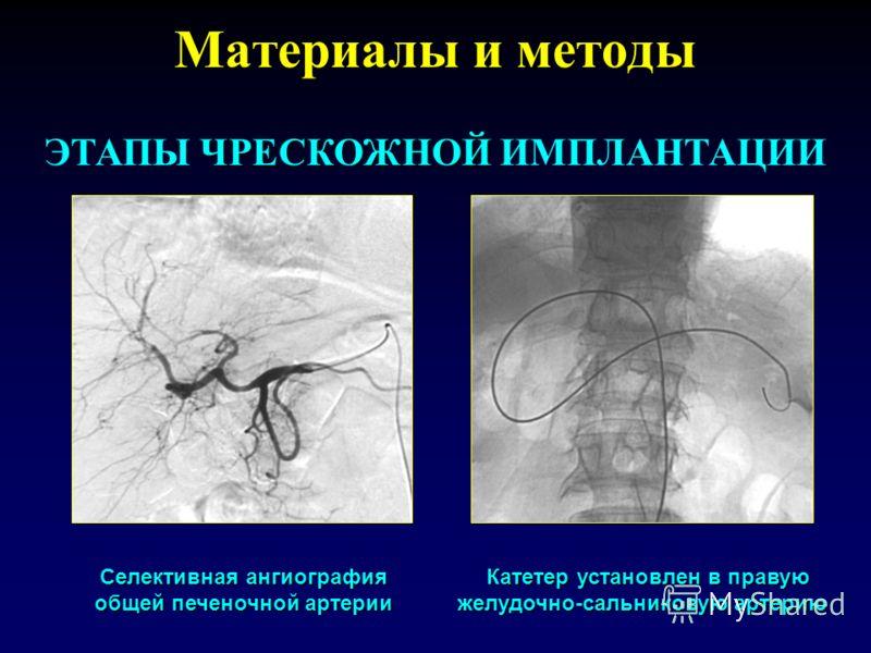 Материалы и методы ЧРЕСКОЖНОЙ ЭТАПЫ ЧРЕСКОЖНОЙ ИМПЛАНТАЦИИ Селективная ангиография общей печеночной артерии Катетер установлен в правую желудочно-сальниковую артерию