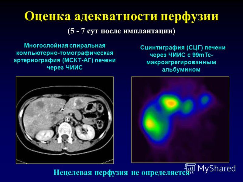 Оценка адекватности перфузии Многослойная спиральная компьютерно-томографическая артериография (МСКТ-АГ) печени через ЧИИС Сцинтиграфия (СЦГ) печени через ЧИИС с 99mTc- макроагрегированным альбумином (5 - 7 сут после имплантации) Нецелевая перфузия н