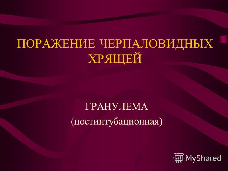 ПОРАЖЕНИЕ ЧЕРПАЛОВИДНЫХ ХРЯЩЕЙ ГРАНУЛЕМА (постинтубационная)