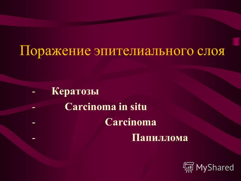 Поражение эпителиального слоя - Кератозы - Carcinoma in situ - Carcinoma - Папиллома