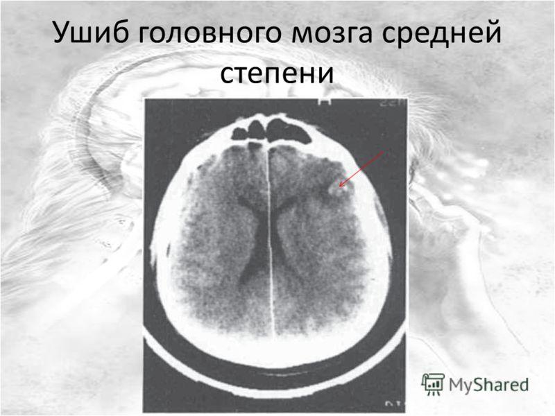 Ушиб головного мозга средней степени