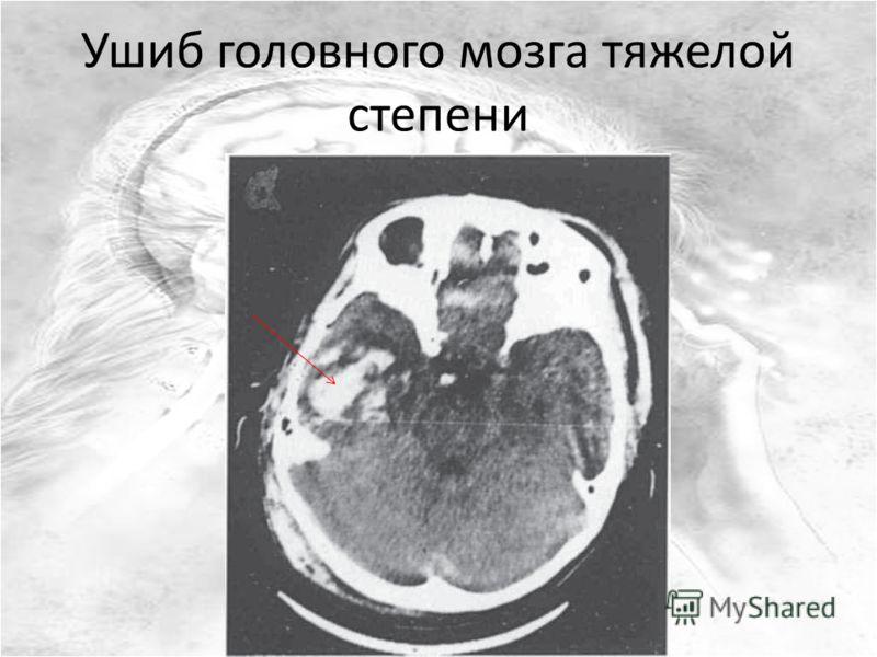 Ушиб головного мозга тяжелой степени