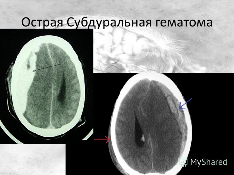 Острая Субдуральная гематома