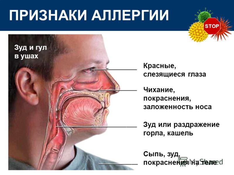 STOP ПРИЗНАКИ АЛЛЕРГИИ Красные, слезящиеся глаза Зуд или раздражение горла, кашель Чихание, покраснения, заложенность носа Зуд и гул в ушах Сыпь, зуд, покраснения на теле